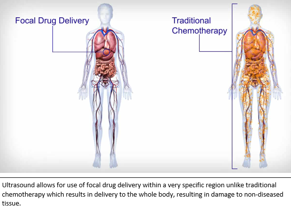 focal-delivery-vs-chemo