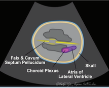 fetal-cranial-2